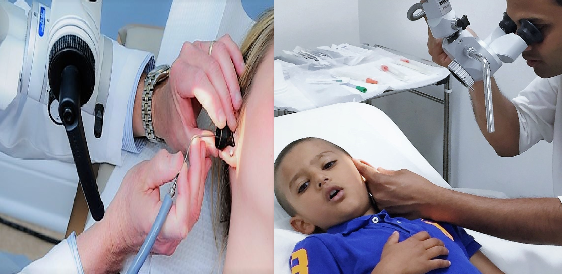 Ear wax removal by microsuction for children and adults